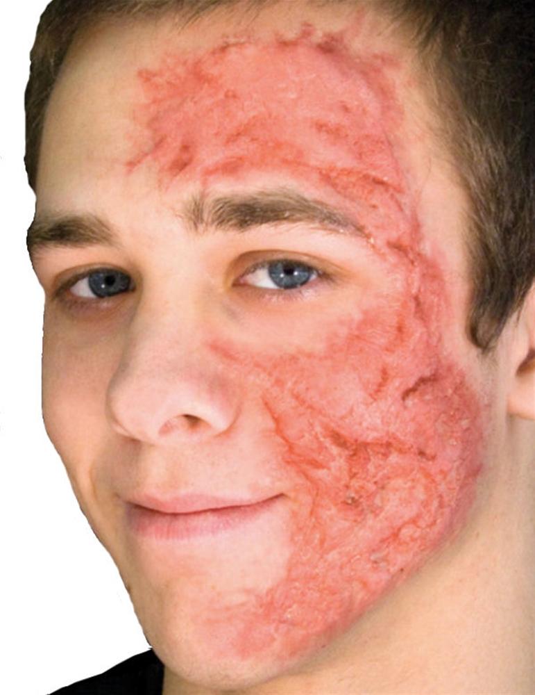 Woochie Burn Scar