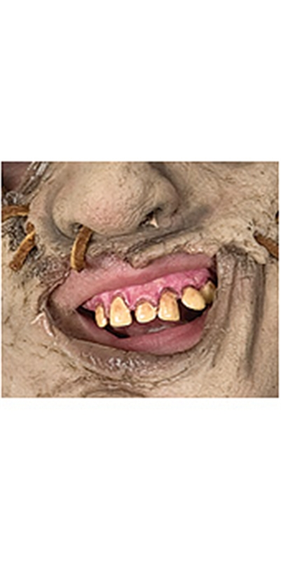 The Texas Chainsaw Massacre Leatherface Prosthetic Teeth