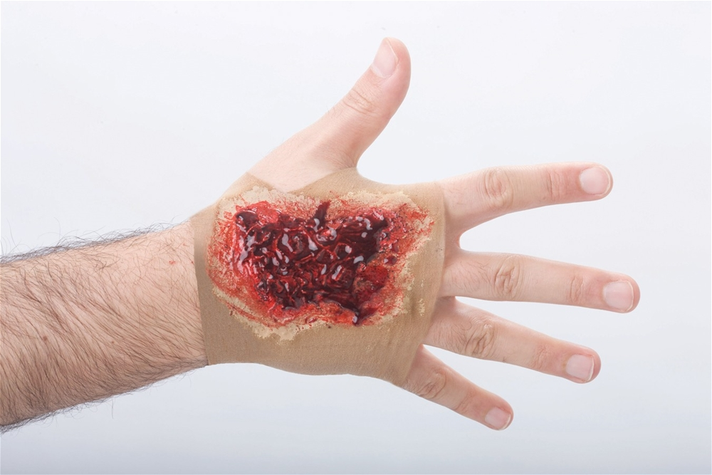 Image of Acid Burn Hand Sleeve