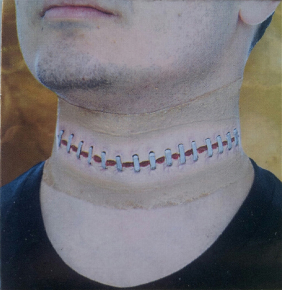 Wounded Neck Sutures Sleeve