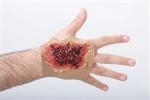 Acid-Burn-Hand-Sleeve