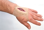 Gashed-Hand-Wound-Sleeve