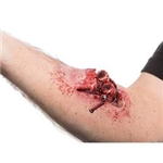 Compound-Fracture-Prosthetic